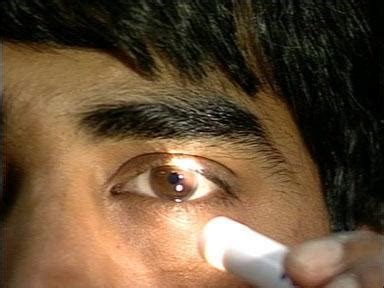 lights in eye pinpoint pupils what does it mechanism causes