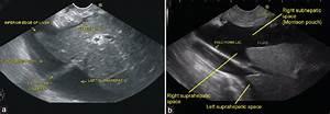 Endoscopic ultrasound of peritoneal spaces Sharma M ...
