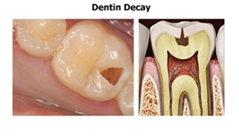 stages  tooth decay news dentagama