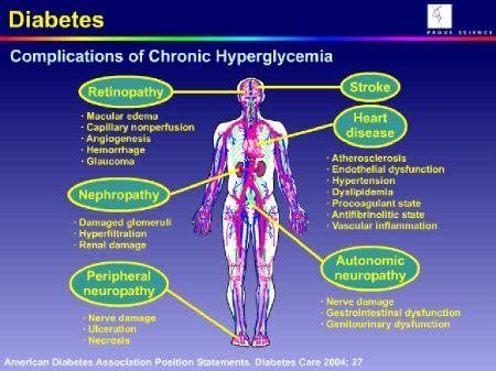 hyperglucemia  comas    acute