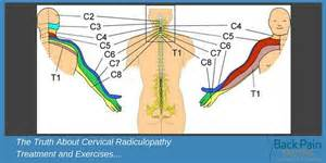 Cervical Radiculopathy Treatment and Exercises Truths! Cervical Radiculopathy