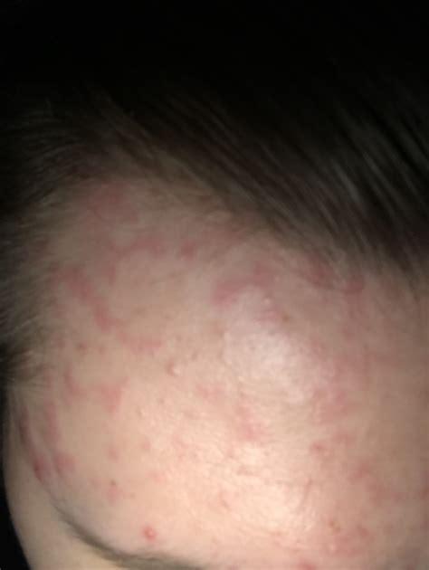 rote flecken auf stirn haut pickel dermatologie