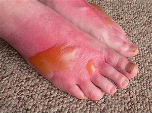 Skin burns – 1st degree, 2nd degree, 3rd degree and what ...