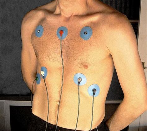 Using publicly available data, we offer a price breakdown. How Much Does a Holter Monitor Test Cost?   HowMuchIsIt.org