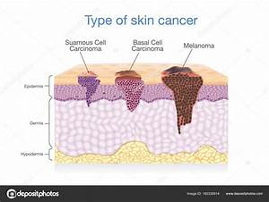 Skin Layer Have 3 Type Of Cancer In One   U2014 Stock Vector