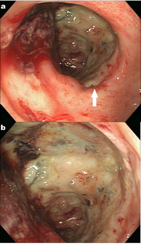 figure  colonoscopy shows circumferential necrosis