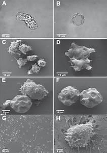A  Acanthamoeba Sp   Isolate Myp2004  Trophozoite As