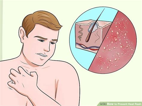 prevent heat rash  steps  pictures wikihow