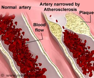 atherosclerosis  symptoms prevention treatment