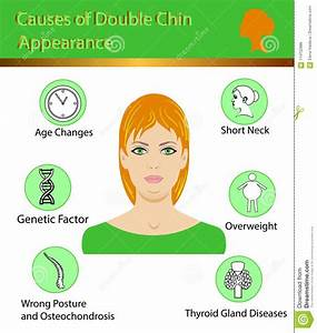 Causes Of Double Chin  Vector Illustration Diagram Stock