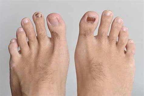 足 の 指 痛い 原因