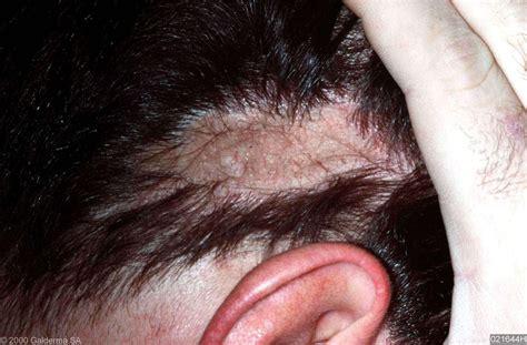 Psoriasis rond neus