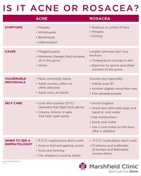 adult acne  rosacea