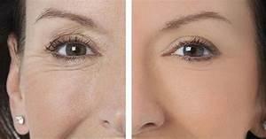 Маски для кожи вокруг глаз от отеков и морщин