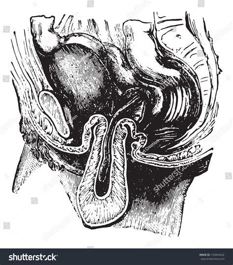 Reversal Inversion Uterus Vintage Engraved Illustration