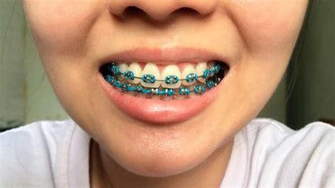 what color braces should i get quiz what color braces should i get what color braces should