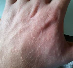 Itchy bumps on hands eczema, back, not itchy, itchy ...