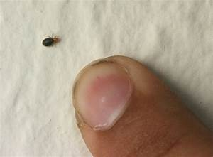 can you see bed bugs the looks the labels the lowdown With can we see bed bugs