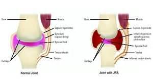 What Is Juvenile Rheumatoid Arthritis? – Arthritis In Children  Juvenile Rheumatoid Arthritis Rheumatoid Arthritis