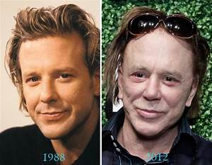 Mickey Rourke Plastic Surgery Before And After Celebrity