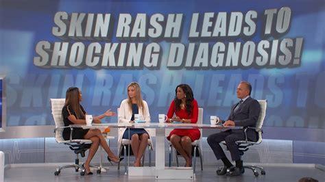 skin rash    breast cancer  doctors tv