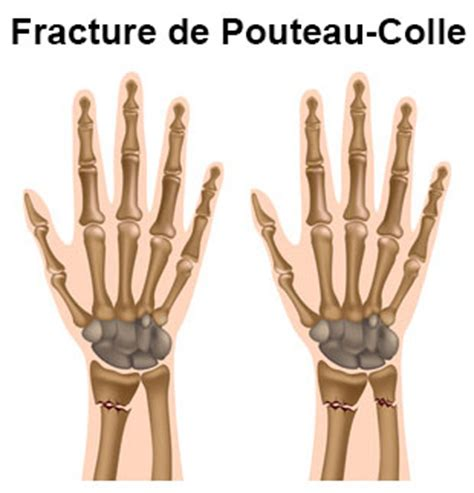 fracture du poignet symptomes traitement definition