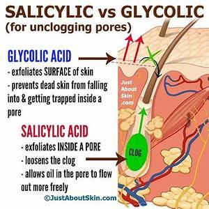 1000 Ideas About Salicylic Acid Peel On Pinterest