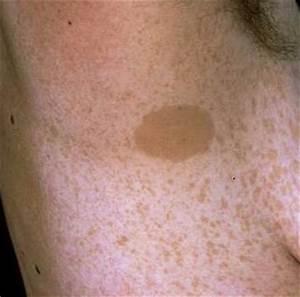 Neurofibromatosis Type 1 Axillary Freckling | www.pixshark ...