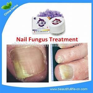 Грибок на ногтях на ногах как лечить в домашних условиях