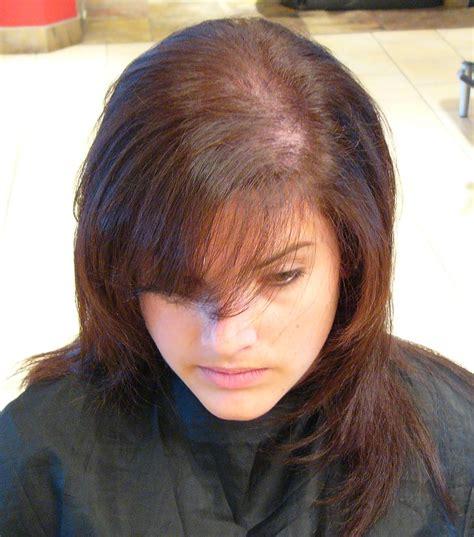 volluma confronts social taboo  womens hair loss