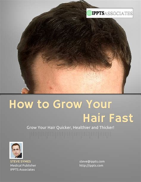 How To Grow Your Hair Fast. Residential Solar Panels Maryland. Making College Affordable Hepatitis A B C D E. Home Security System Canada Bmw M5 G Power. Air Cargo Transport Services Inc. Online Computer Science Colleges. Health Care Administration Certificate. Online Affordable Colleges Web Report Builder. Windshield Repair Reno Rental Property Lawyer