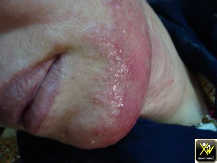 dermite de siege érythème fessier dermatomaroc