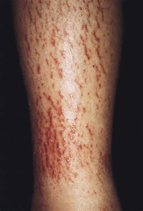 striaelike epidermal distension dermatology jama