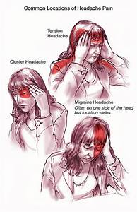 Pressure Point Therapy for Treating Headaches and Migraines  Migraine Relaxation techniques