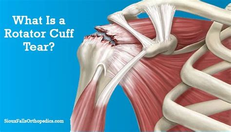 An Introduction To Rotator Cuff Tear