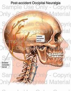 63 Best It U0026 39 S Not A Migraine Images On Pinterest