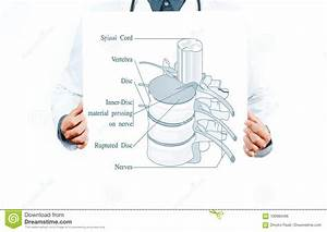 Synovial Joint Diagram Labeled Cartoon Vector
