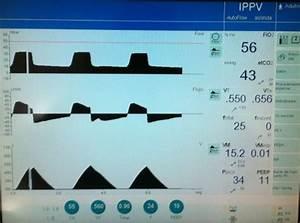 Pressure control versus Pressure regulated Volume control
