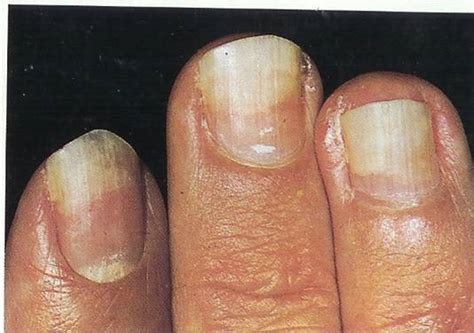 Toenail Lifting From Nail Bed by Fingernails And What They Reveal Complete Information