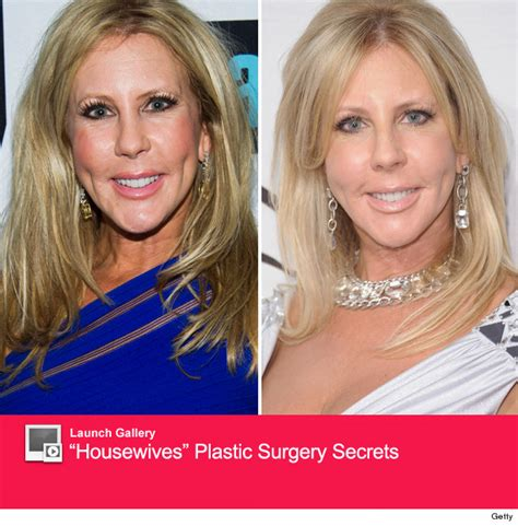 Vicki Gunvalson Plastic Surgery  See What She Looks Like. Management Course Syllabus Emr Patient Portal. New Orleans Dealerships Mcc South Omaha Campus. Permanent Hair Implants Gardiner Savings Bank. Long Term Care Insurance Companies List. Comfort Dental Lafayette Compare Fax Services. Credit Cards That Help You Build Your Credit. Learn Spanish In Cusco Protein A Purification. Best Laptops For Photography