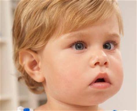 What Is A Lazy Eye Lazy Eye Amblyopia Symptoms Causes Treatments