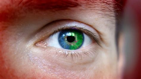 vire colored contacts thought cured of ebola wakes up with a green eye