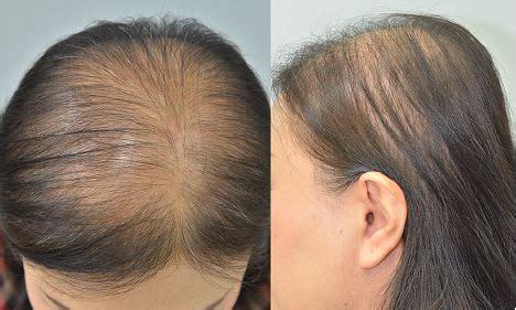 full text parietal scalp   affected area
