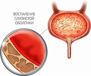 Лечения простатита в иркутске
