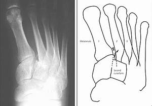 Diagnosis and Management of Metatarsal Fractures ...