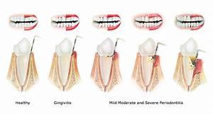 Periodontal Treatment | Santa Fe Family Dental