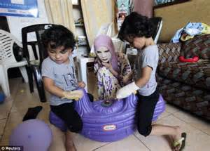 Innocent victims: Scarred faces of Syrian children ...