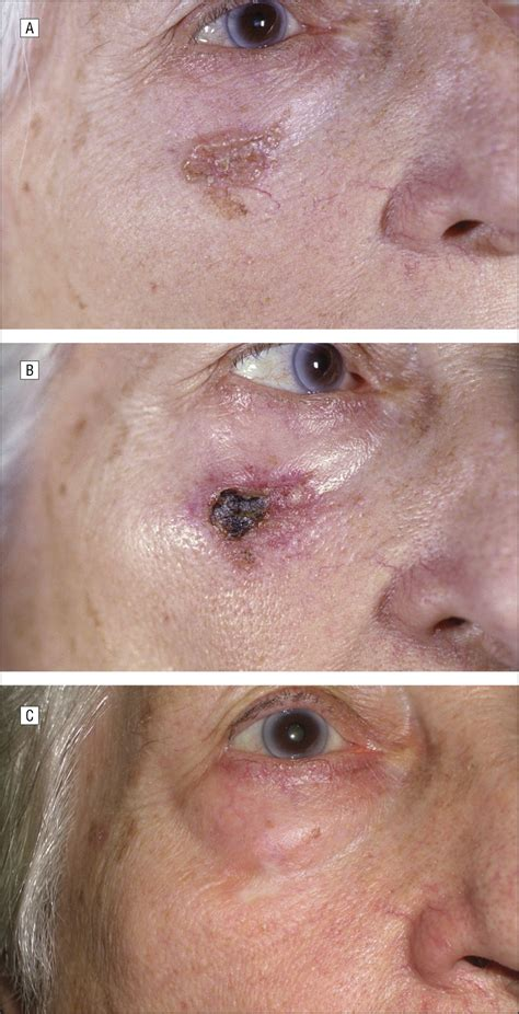 fifty  basal cell carcinomas treated  topical