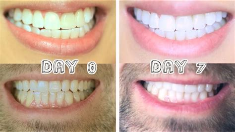 Best Tooth Whitening by Best Teeth Whitening For Stains Dental Work