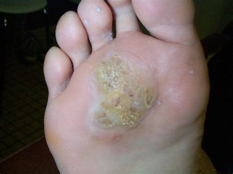 Psoriasis : sympt mes, traitement
